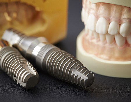 Smile and dental implant models