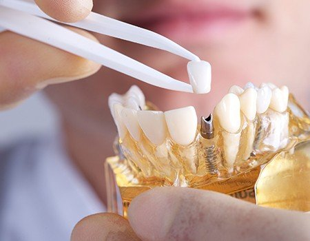 Model smile iwth implant supported dental crown